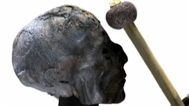 Trepanation was a process seen in Peruvian mummies in which an ancient witch doctor cut out a portion of the human skull.