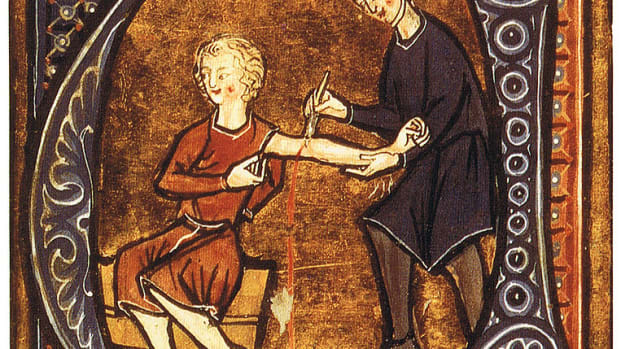 list-ancient-medical-techniques-bloodletting-2