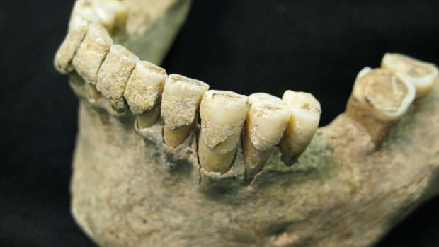hith-new-research-drills-into-history-of-cavities-2