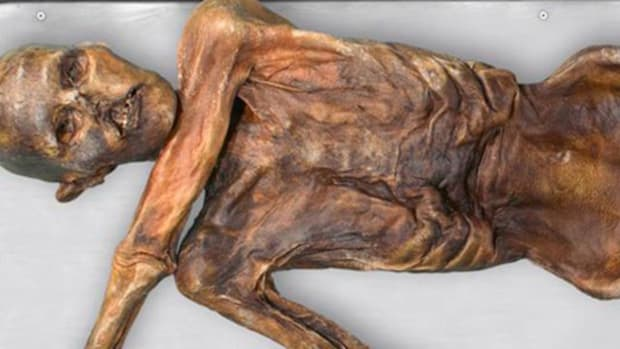 hith-otzi-stomach-2