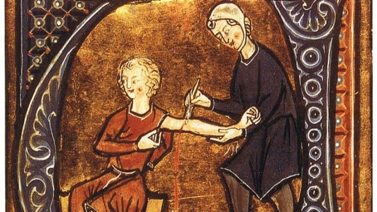 7 Unusual Ancient Medical Techniques