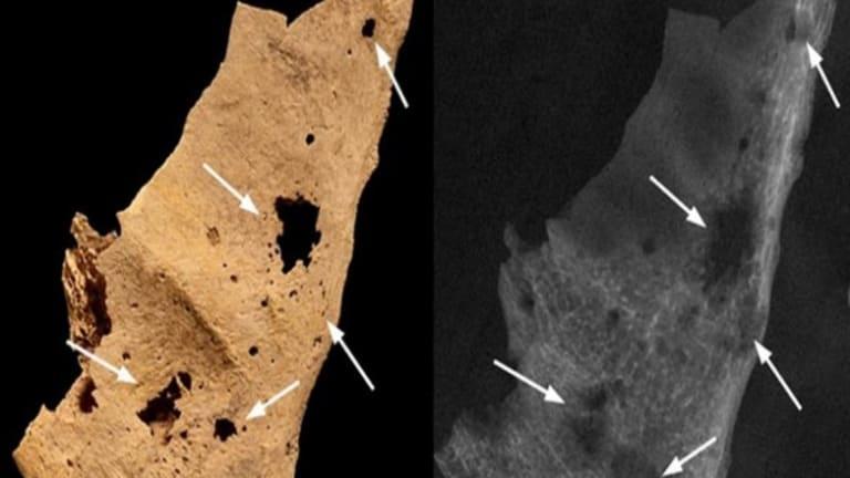 3,200-Year-Old Skeleton is Oldest Known Case of Human Cancer