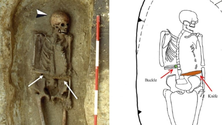 This Medieval Skeleton Has a Knife for a Hand