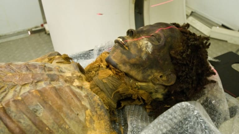 Egyptian Princess Needed Bypass Surgery, Mummy Study Shows