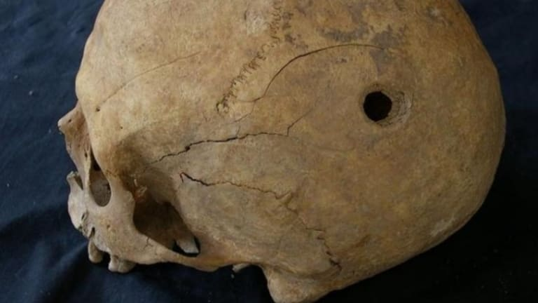 Perforated Skulls From Middle Ages Found in Spain