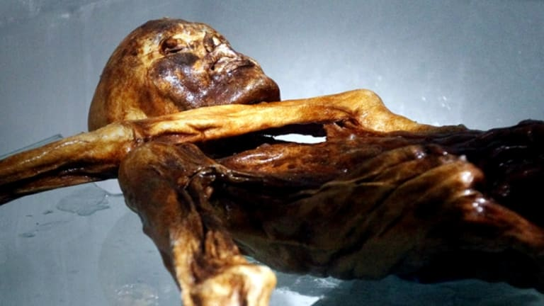Iceman Frozen for Millennia Had Lyme Disease, Clogged Arteries & Sardinian Relatives