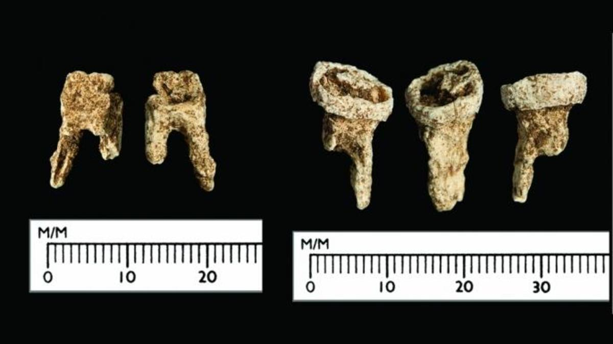 The Viking's teeth. (Credit: Antiquity Publications Ltd, 2017)