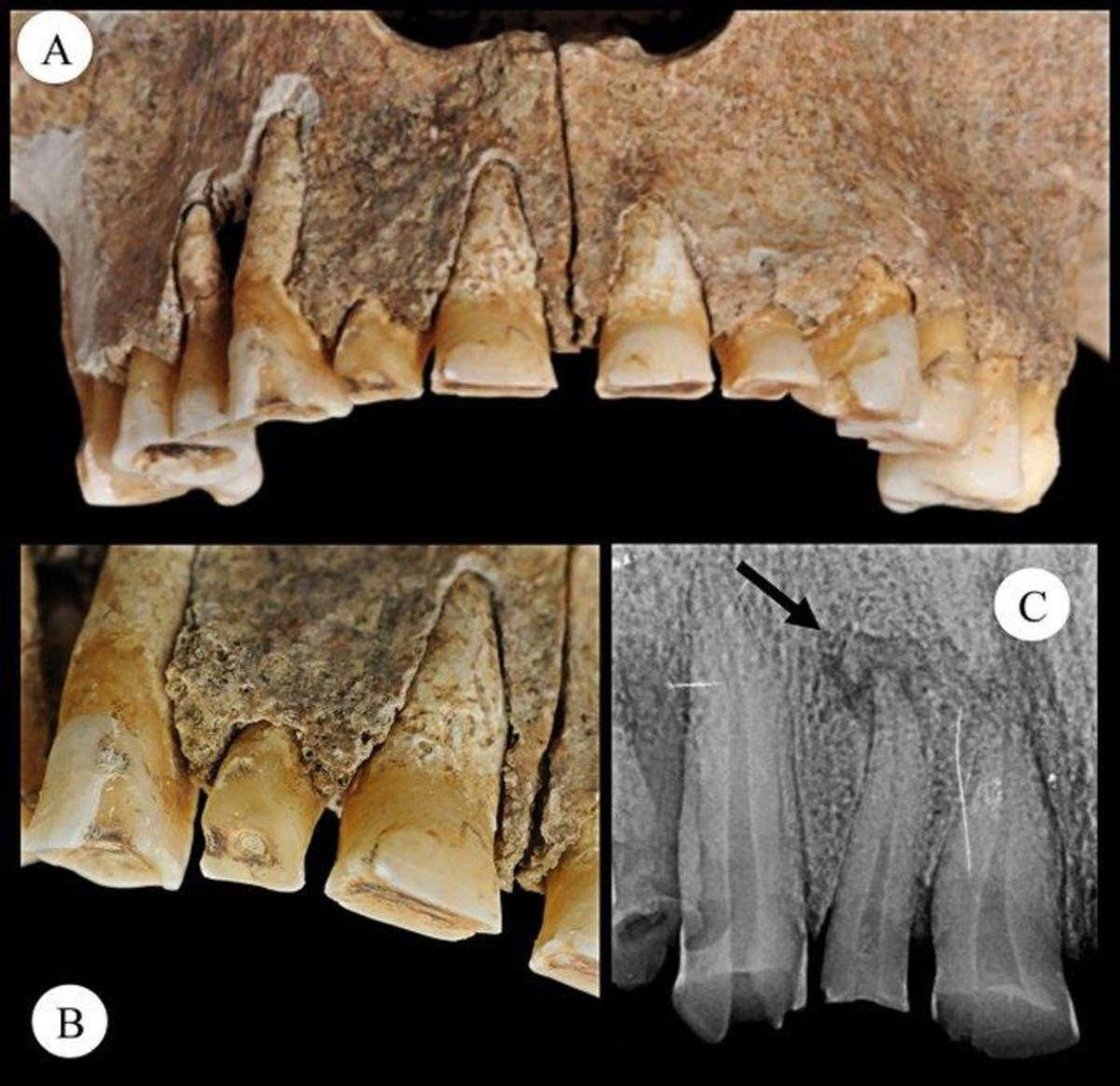 Photos of the skeletons teeth that show signs of wear, indicating the individual may have used their teeth to attach the knife. (Credit: leana Micarelli et al., 2018)