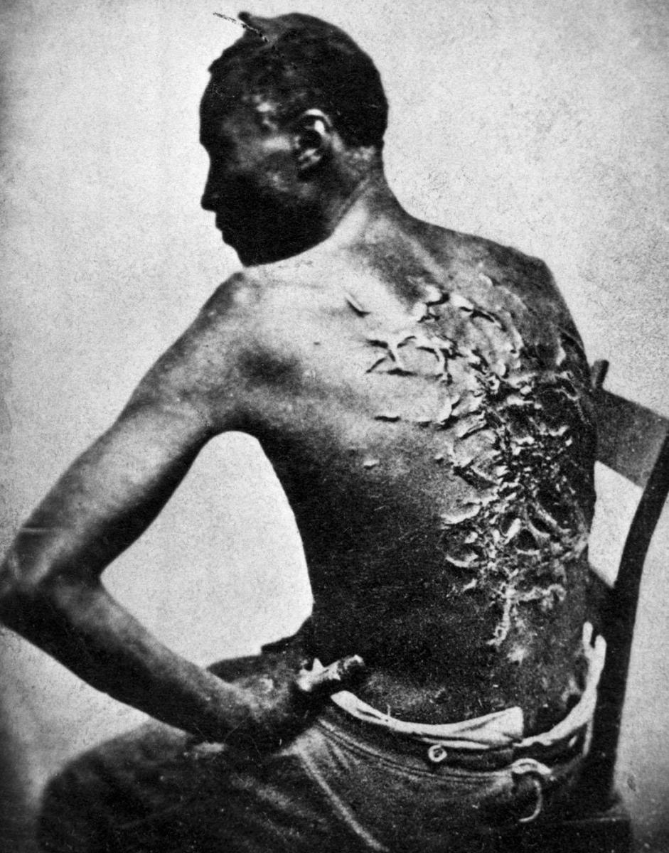 Gordon, a freed slave in Baton Rouge, Louisiana, displays his whip-scarred back on April 2, 1863. (Credit: Bettmann Archive/Getty Images)