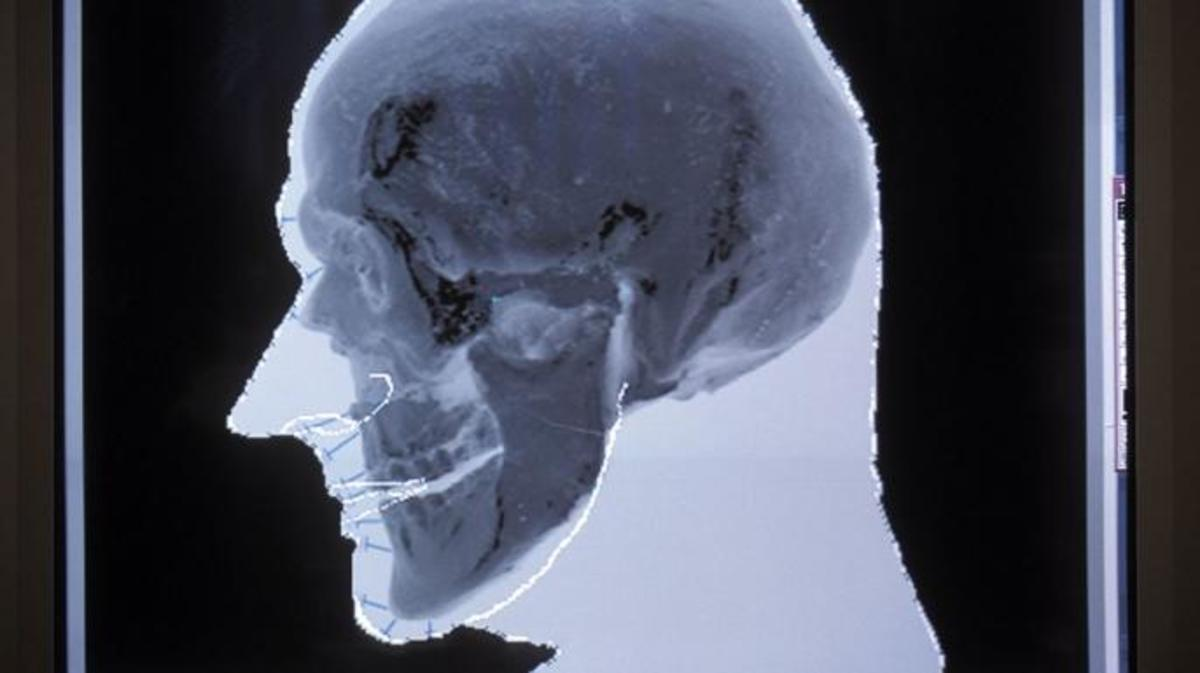 The probable shape of Otzi's face is produced and superimposed over the digital image of his actual skull as part of the facial reconstruction. (Photo by Patrick Landmann/Getty Images)