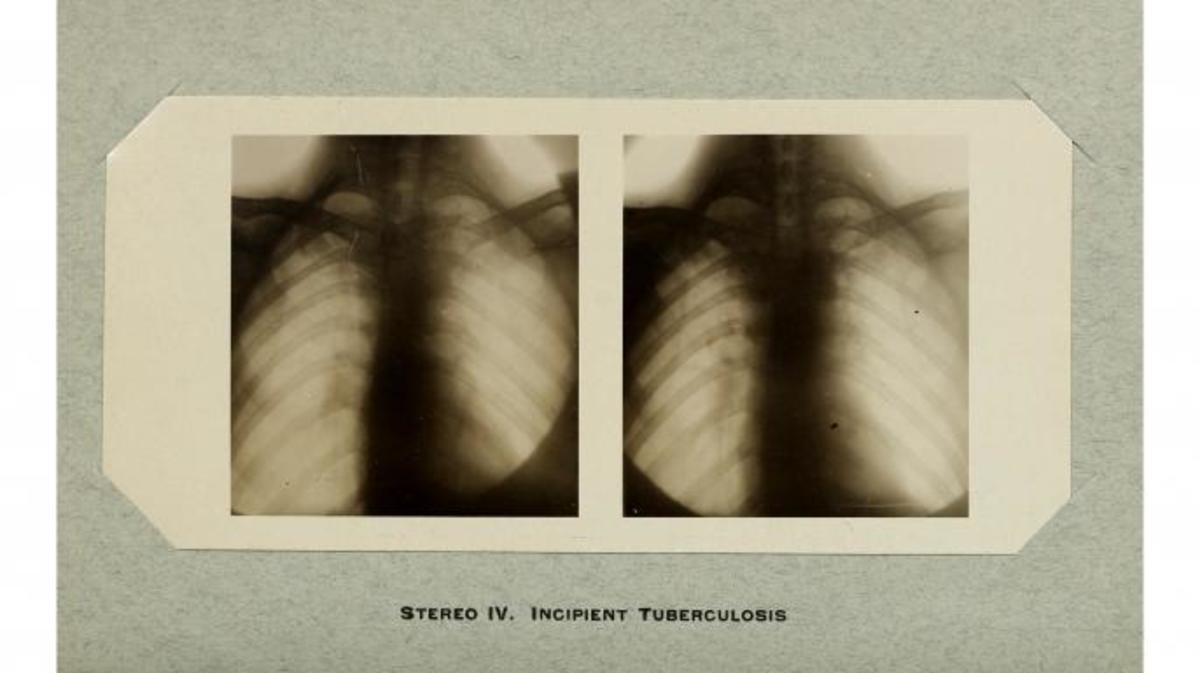 1909 X-ray from the American Quarterly of Roentgenology of tuberculosis of the lung.