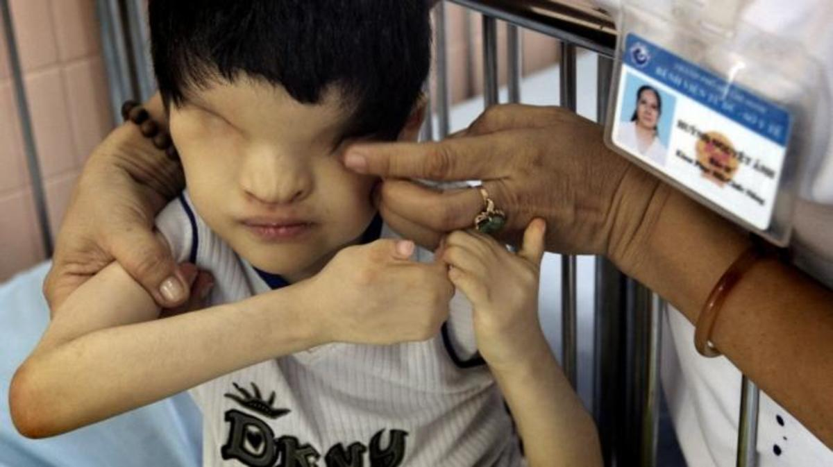 A young boy, who was born without eyes, at the Tu Du Hospital in Ho Chi Minh City, home to dozens of children who suffer from severe mental and physical disabilities as results from their parents coming in contact with Agent Orange. (Credit: Kuni Takahashi/CHI-Photo/REX/Shutterstock)