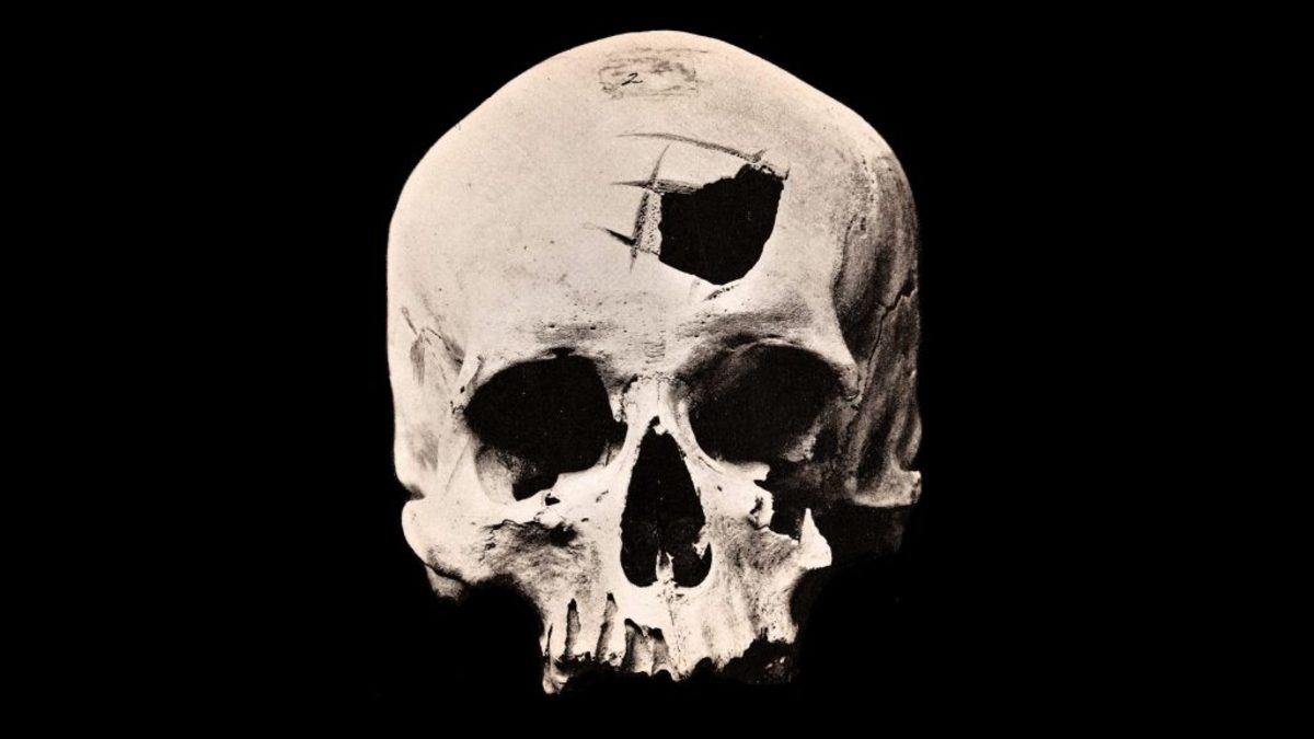Ancient Peruvian skull with a hole from brain surgery done by the Inca people. (Credit: Wellcome Collection/CC BY 4.0)