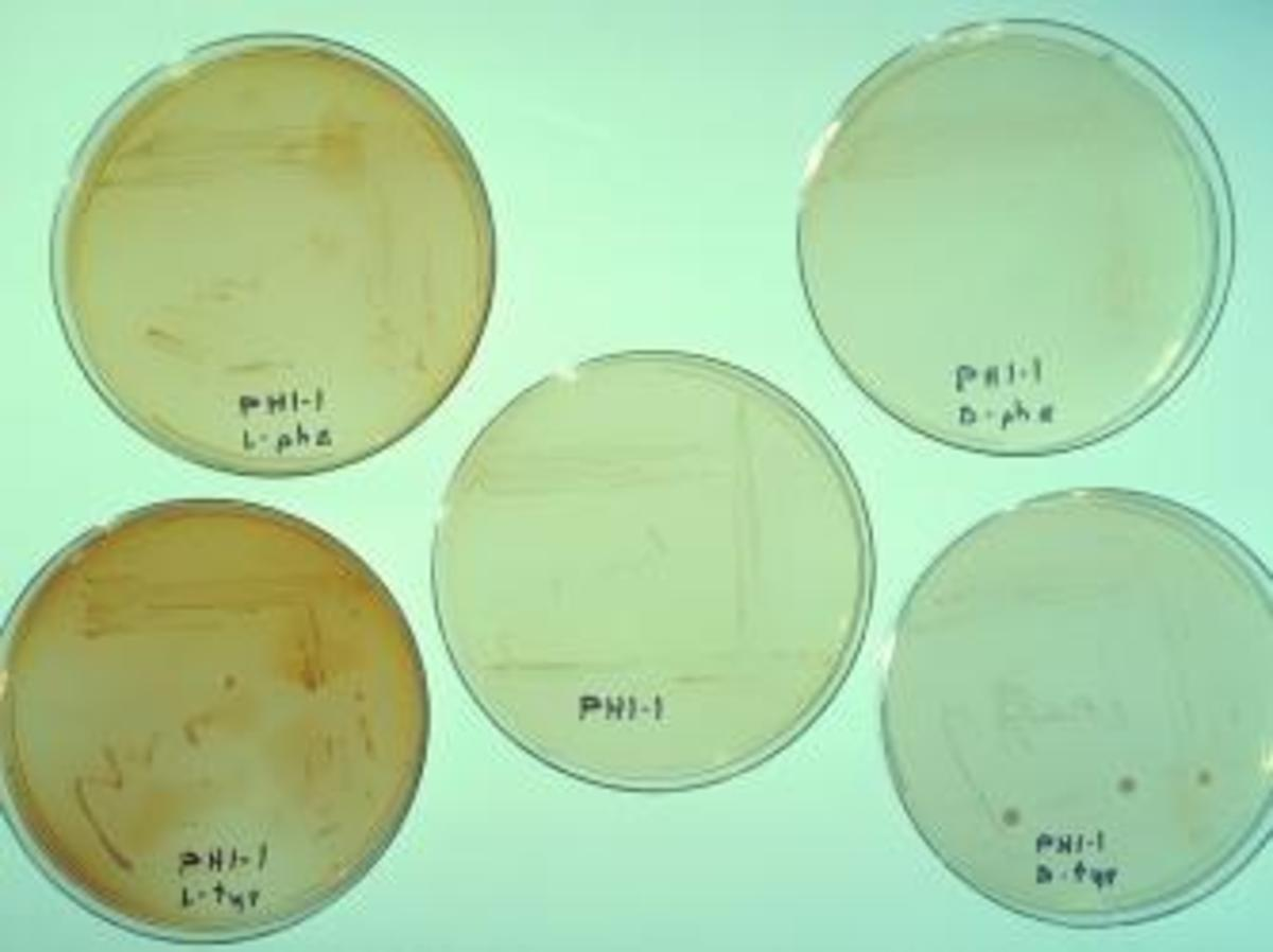 This image depicts five petri dish culture that had been inoculated with cultures of various strains of Legionella pneumophila. (Credit: Smith Collection/Gado/Getty Images).