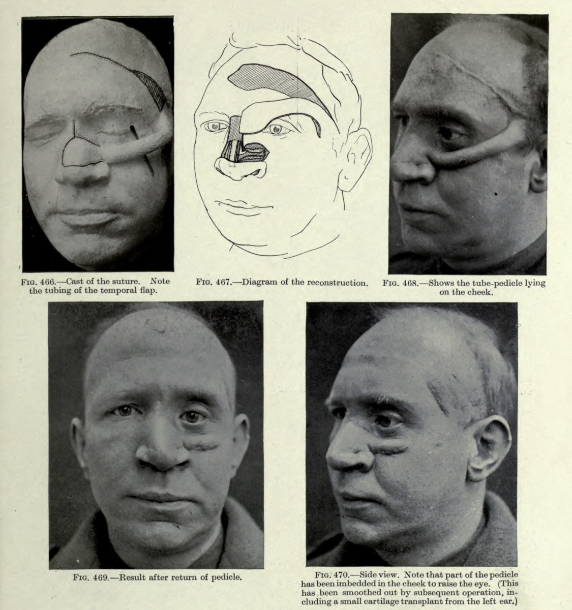plastic surgery of World War I