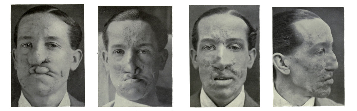 WWI Plastic Surgery