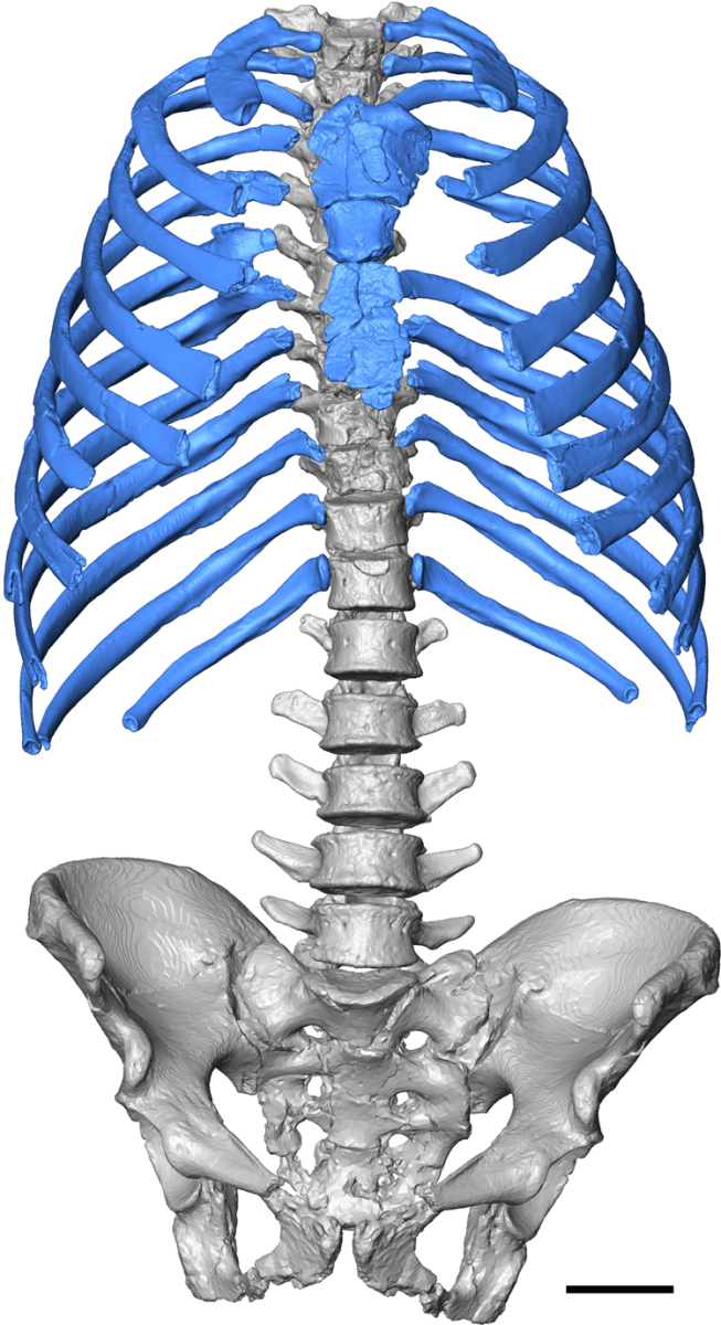 A virtual reconstruction thorax of Kebara 2. The blue color is to highlight the ribs and the sternum