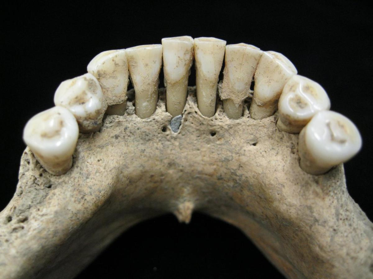 Lapis lazuli pigment entrapped in the dental calculus on the lower jaw a medieval woman.