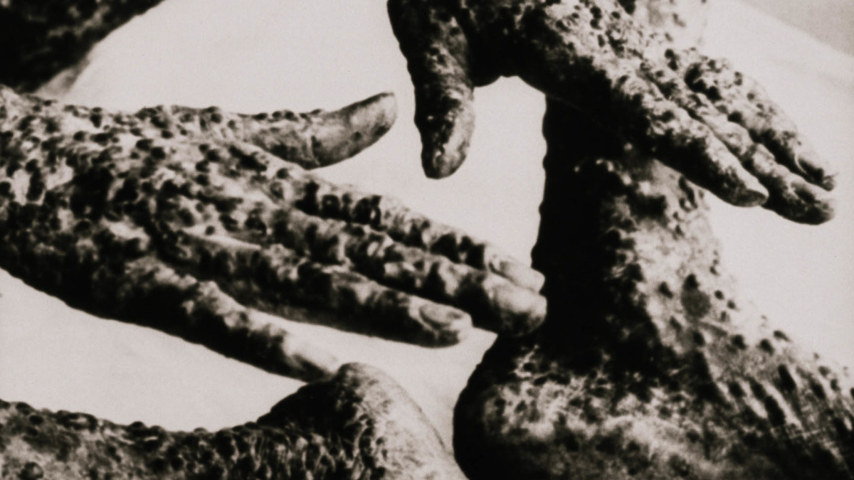 How an African Slave in Boston Helped Save Generations from Smallpox