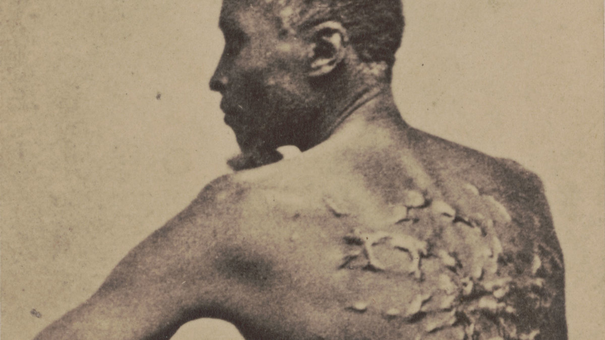 The Shocking Photo of 'Whipped Peter' That Made Slavery's Brutality