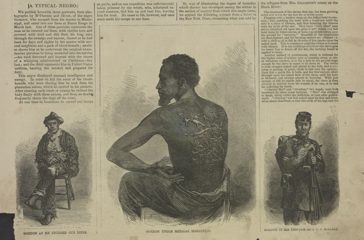 Three illustrations showing Peter after his escape, the welts from being whipped upon his back, and in uniform after he had joined the Union Army, featured in McPherson and Oliver in July, 1863.