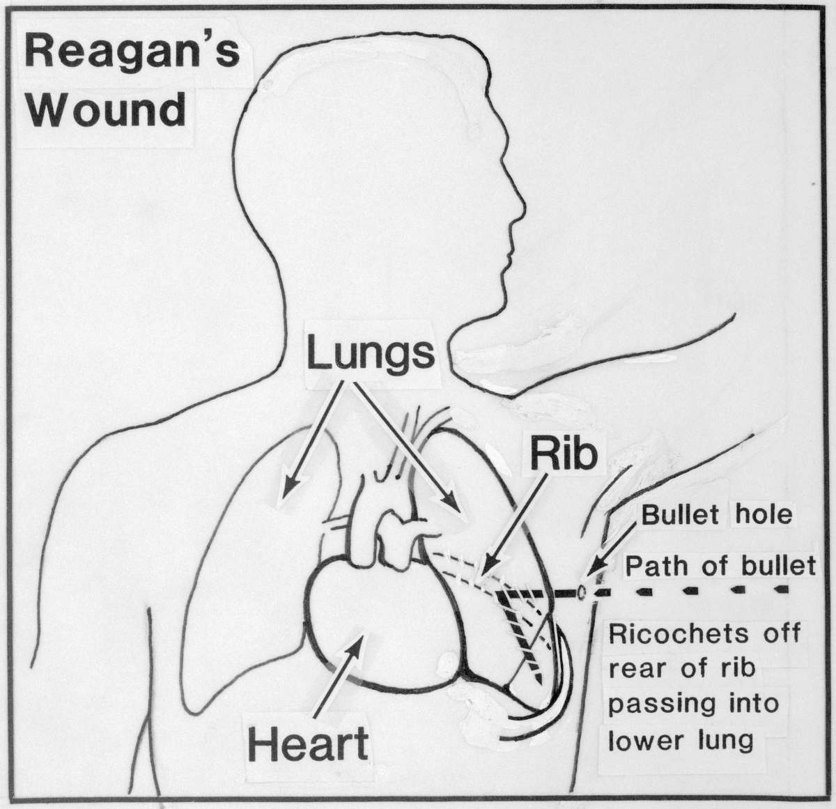 Details of Reagan's gun shot wound after the assassination attempt.