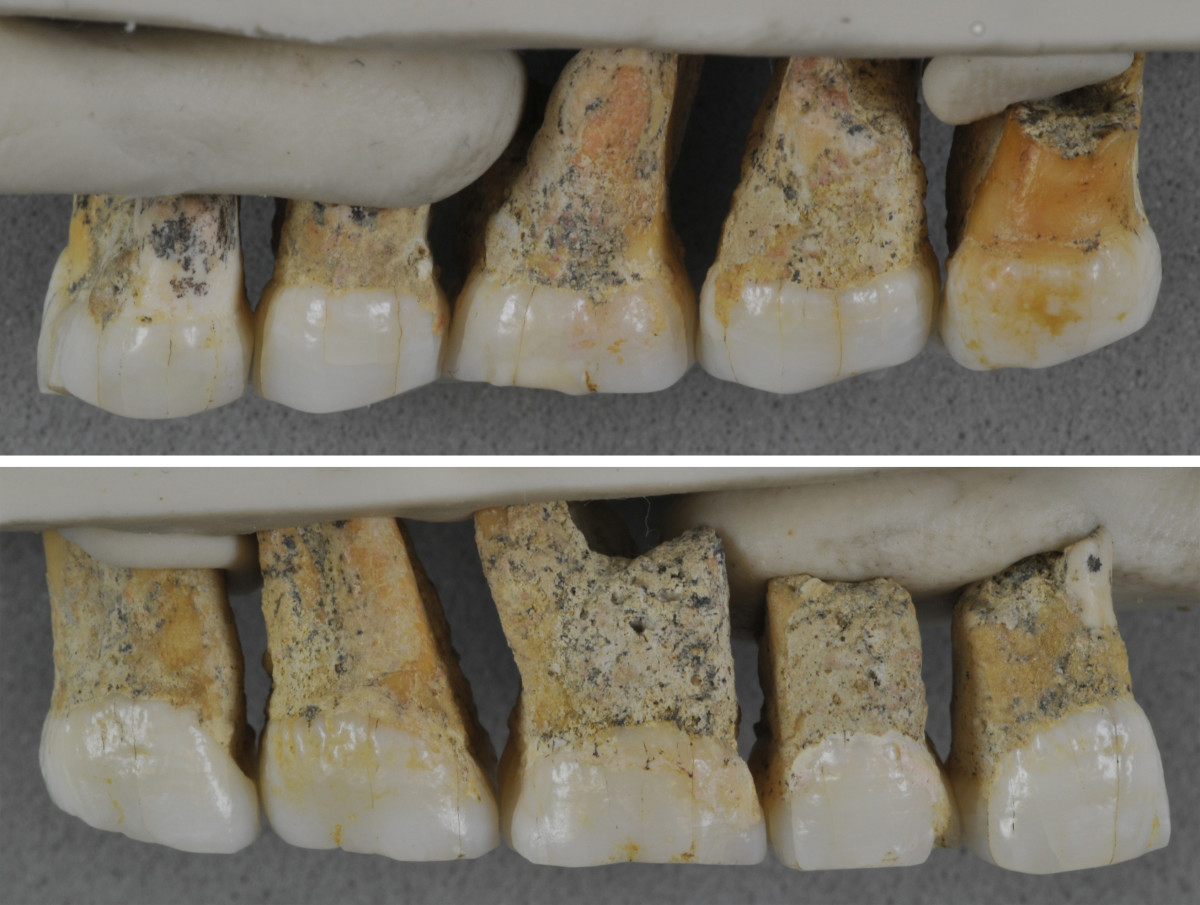 Molars and premlars found of the Homo luzonensis.
